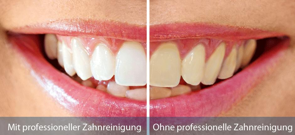 Prof. Zahnreinigung